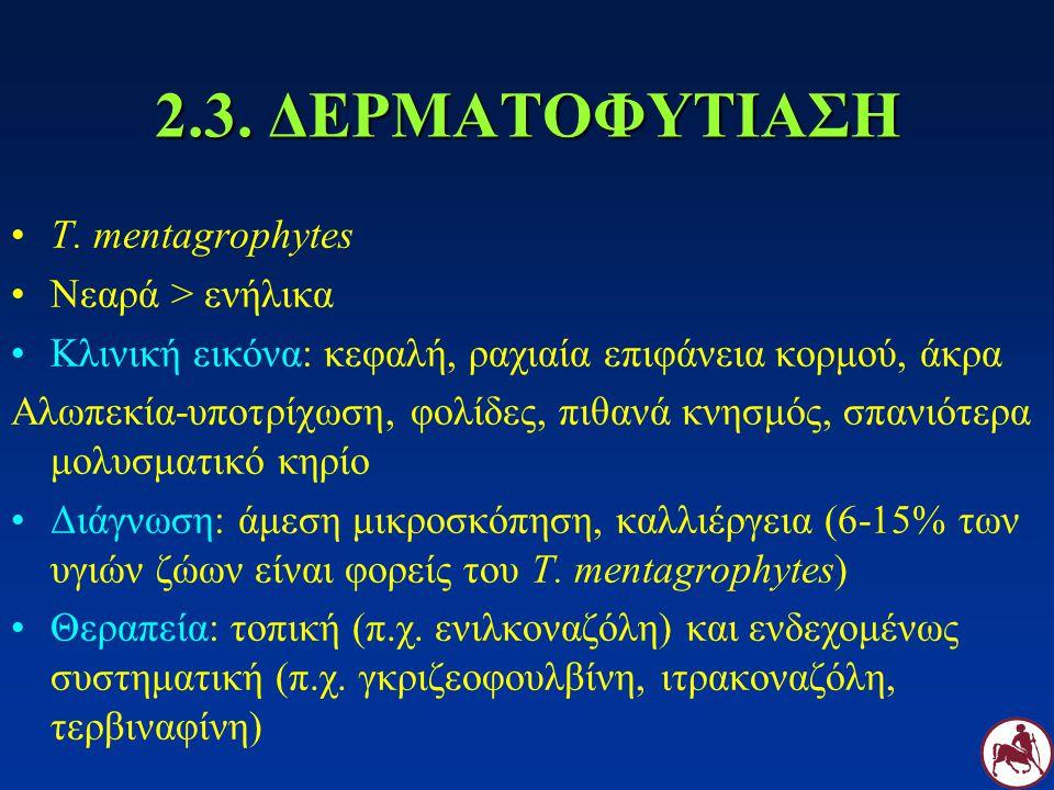 2.3. ΔΕΡΜΑΤΟΦΥΤΙΑΣΗ T. mentagrophytes Νεαρά > ενήλικα