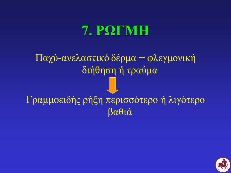 7. ΡΩΓΜΗ Παχύ-ανελαστικό δέρμα + φλεγμονική διήθηση ή τραύμα