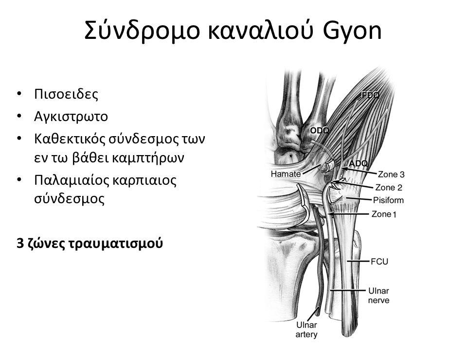Σύνδρομο καναλιού Gyon