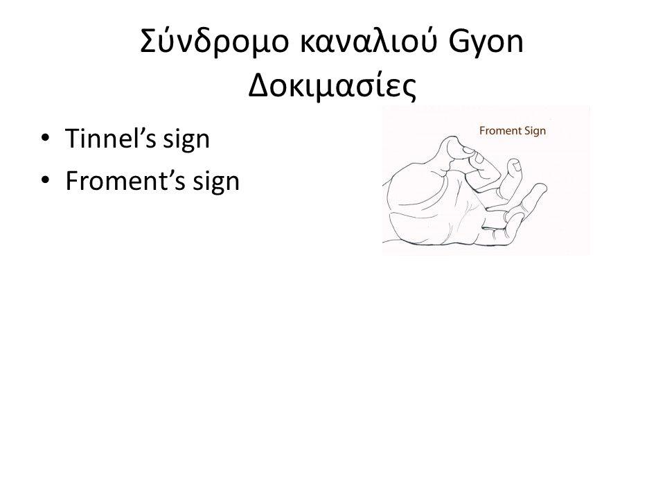 Σύνδρομο καναλιού Gyon Δοκιμασίες