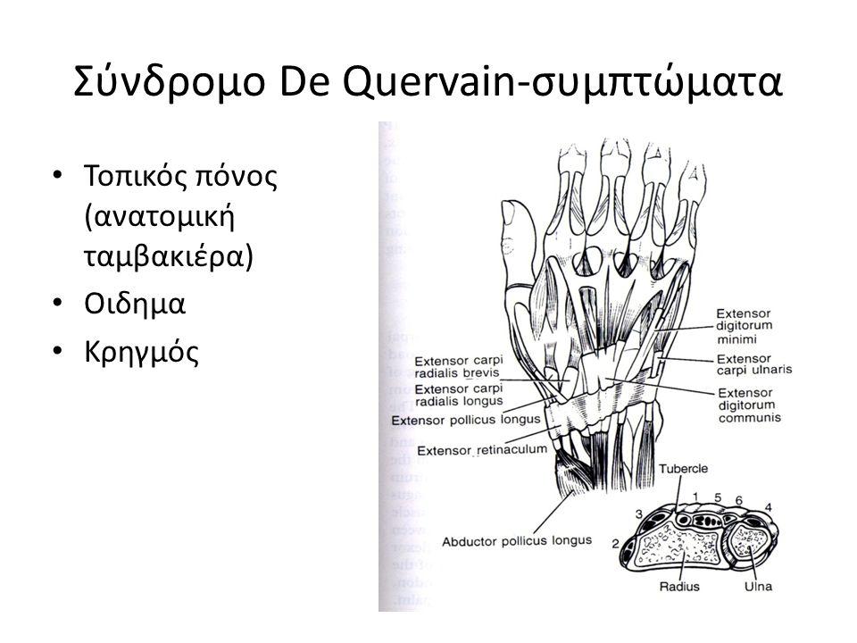 Σύνδρομο De Quervain-συμπτώματα