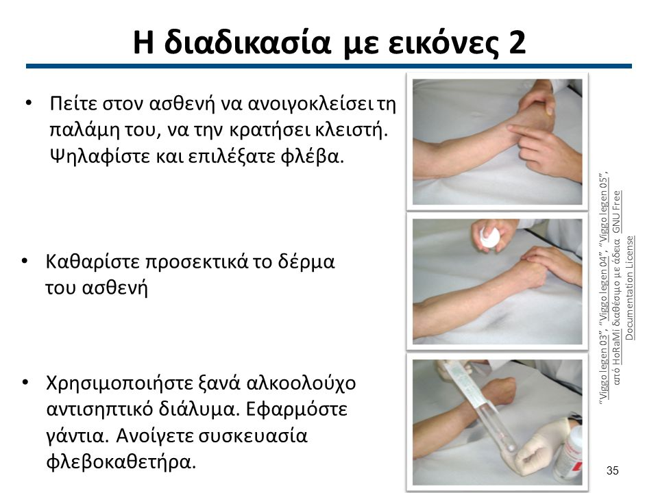 Η διαδικασία με εικόνες 3