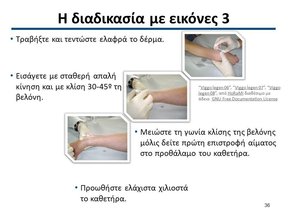 Η διαδικασία με εικόνες 4