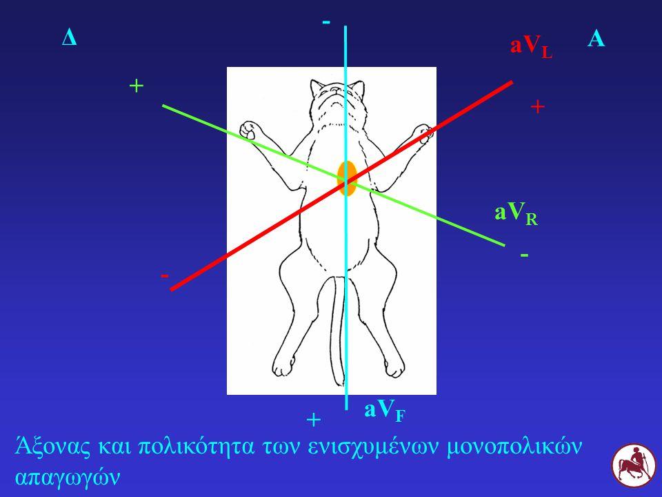 - Δ Α aVL + + aVR - - aVF + Άξονας και πολικότητα των ενισχυμένων μονοπολικών απαγωγών