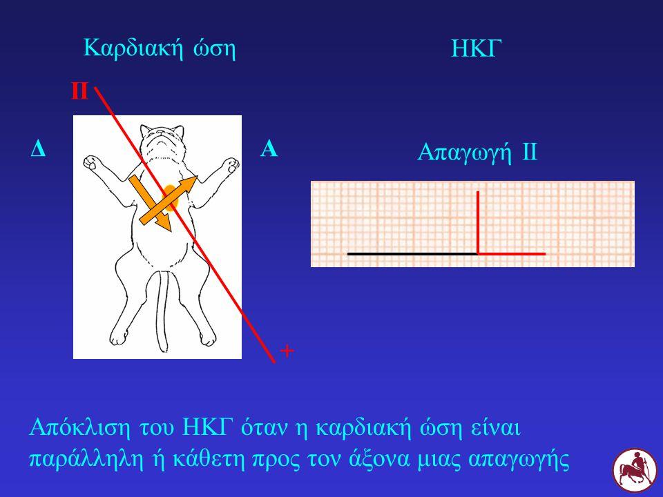 Καρδιακή ώση ΗΚΓ. II. Δ. Α. Απαγωγή ΙΙ.