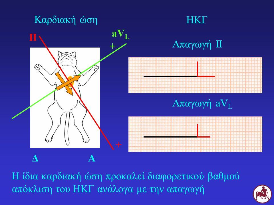 Καρδιακή ώση ΗΚΓ. aVL. II. Απαγωγή ΙΙ. + Απαγωγή aVL. + Δ. Α.