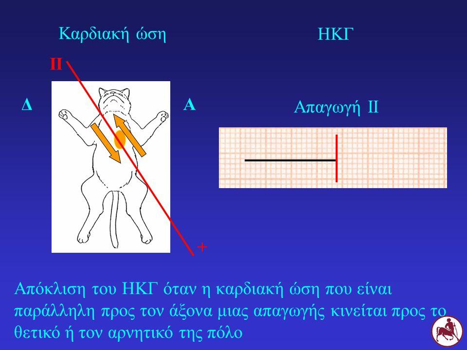 Καρδιακή ώση ΗΚΓ. II. Δ. Α. Απαγωγή ΙΙ. +
