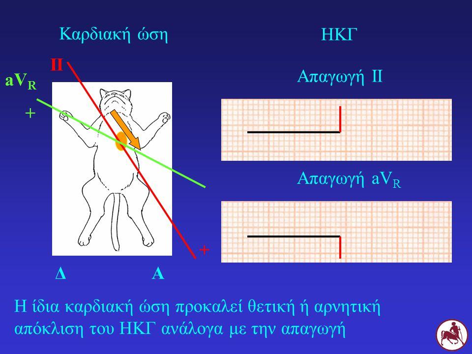 Καρδιακή ώση ΗΚΓ. II. Απαγωγή ΙΙ. aVR. + Απαγωγή aVR. + Δ. Α.