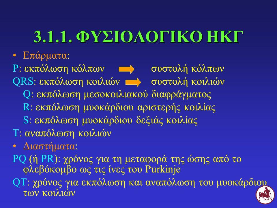 3.1.1. ΦΥΣΙΟΛΟΓΙΚΟ ΗΚΓ Επάρματα: Ρ: εκπόλωση κόλπων συστολή κόλπων