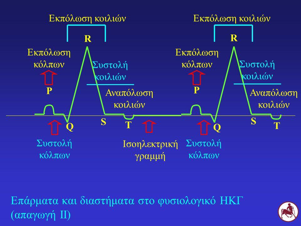 Επάρματα και διαστήματα στο φυσιολογικό ΗΚΓ (απαγωγή ΙΙ)