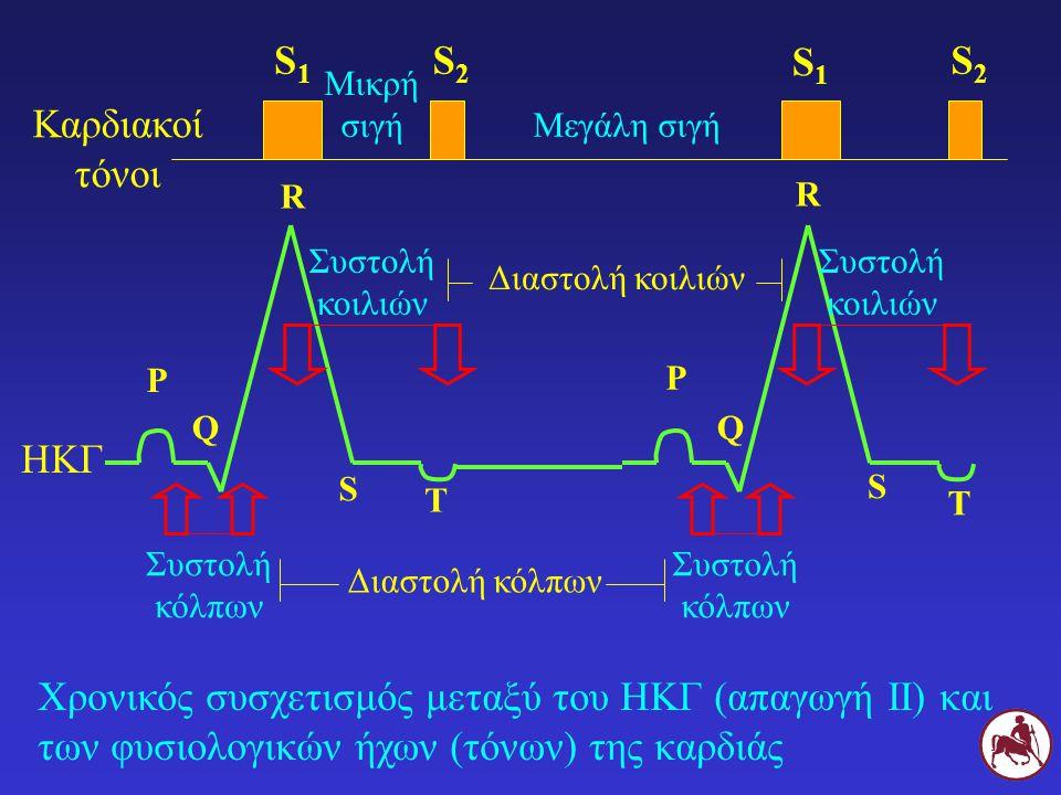 S1 S2 S1 S2 Καρδιακοί τόνοι ΗΚΓ
