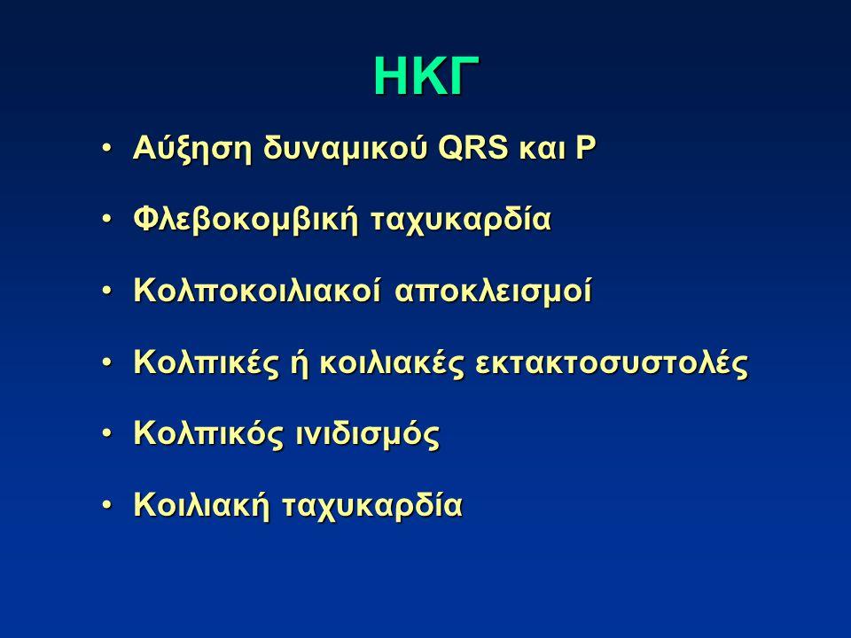 ΗΚΓ Αύξηση δυναμικού QRS και P Φλεβοκομβική ταχυκαρδία
