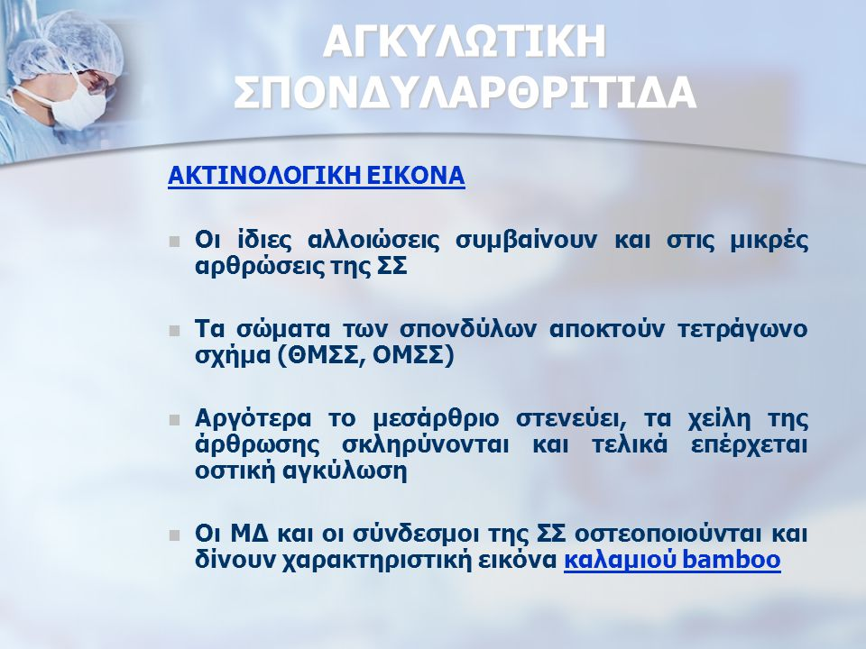 ΑΓΚΥΛΩΤΙΚΗ ΣΠΟΝΔΥΛΑΡΘΡΙΤΙΔΑ