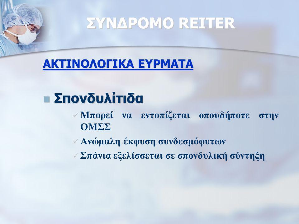 ΣΥΝΔΡΟΜΟ REITER Σπονδυλίτιδα ΑΚΤΙΝΟΛΟΓΙΚΑ ΕΥΡΜΑΤΑ