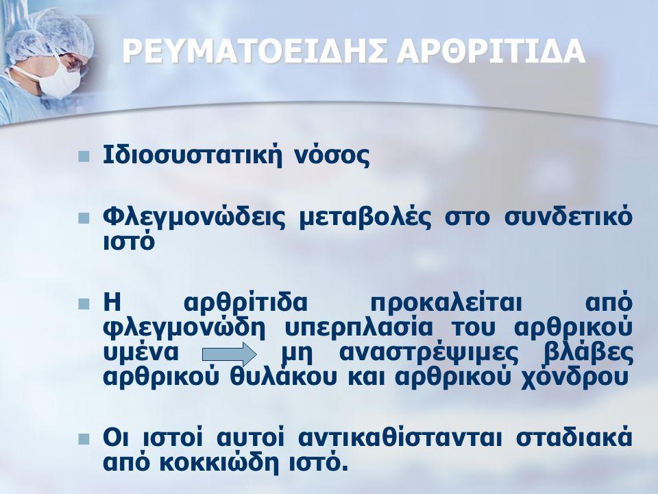 ΡΕΥΜΑΤΟΕΙΔΗΣ ΑΡΘΡΙΤΙΔΑ