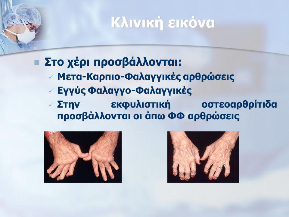 Κλινική εικόνα Στο χέρι προσβάλλονται: