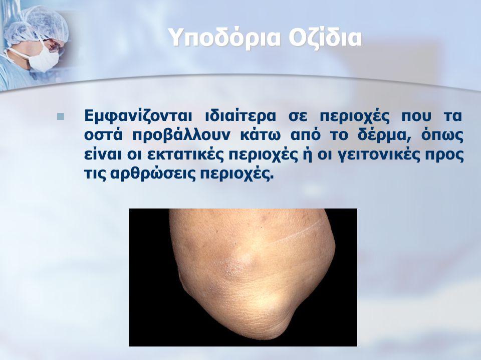 Υποδόρια Οζίδια