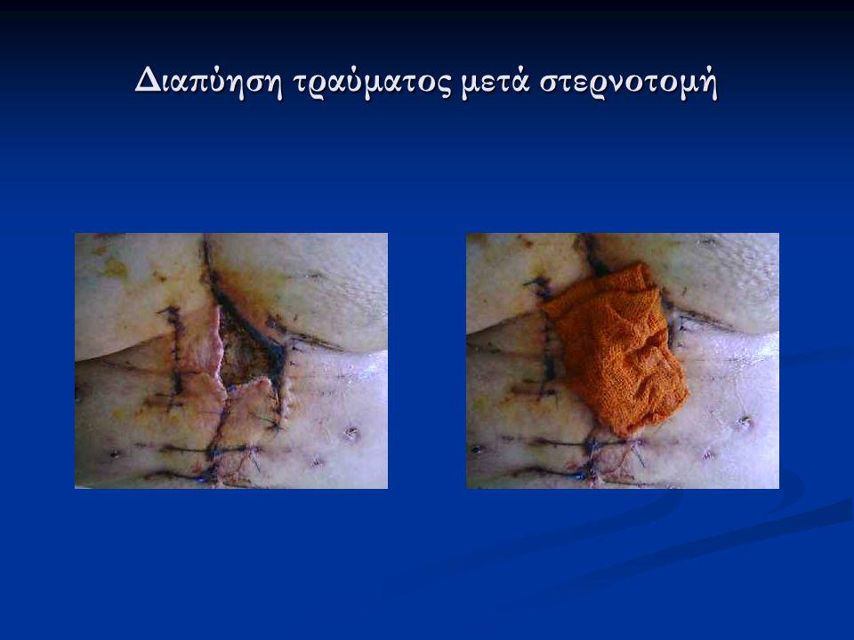 Διαπύηση τραύματος μετά στερνοτομή
