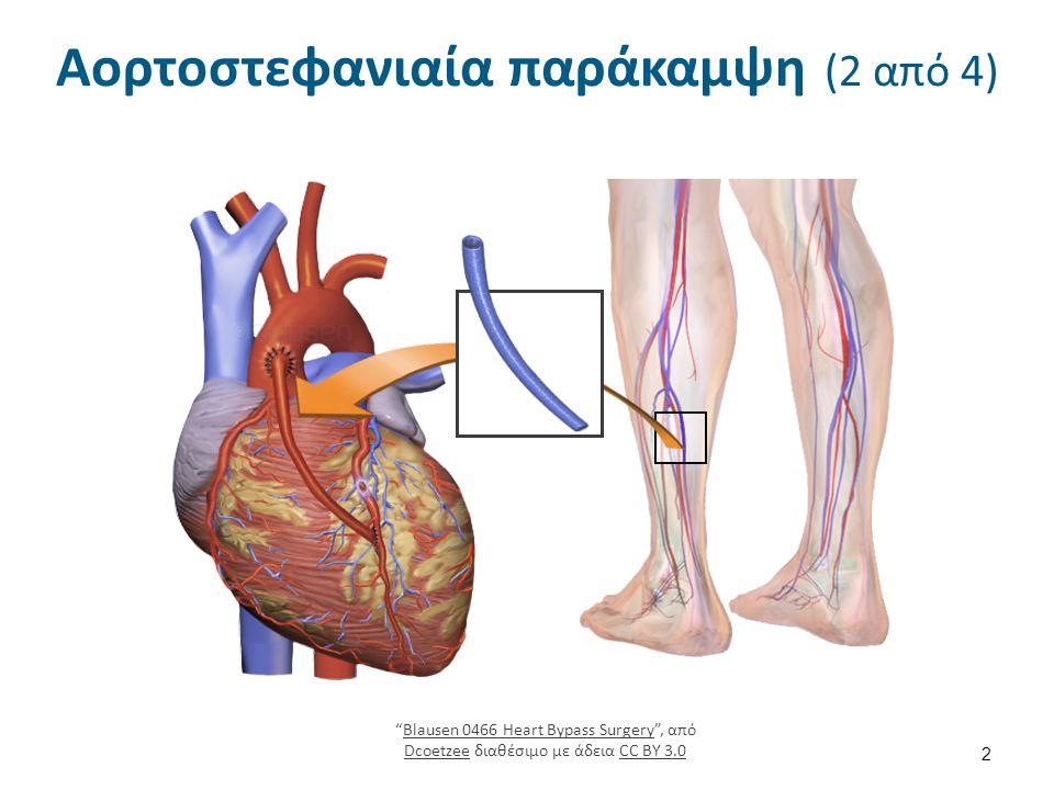 Αορτοστεφανιαία παράκαμψη (3 από 4)