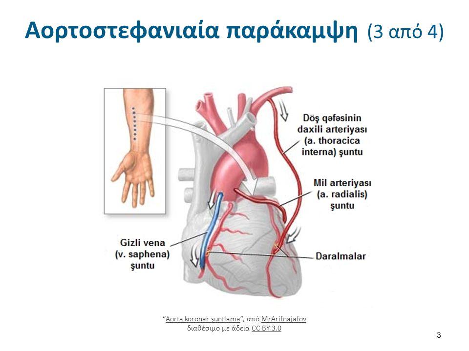 Αορτοστεφανιαία παράκαμψη (4 από 4)