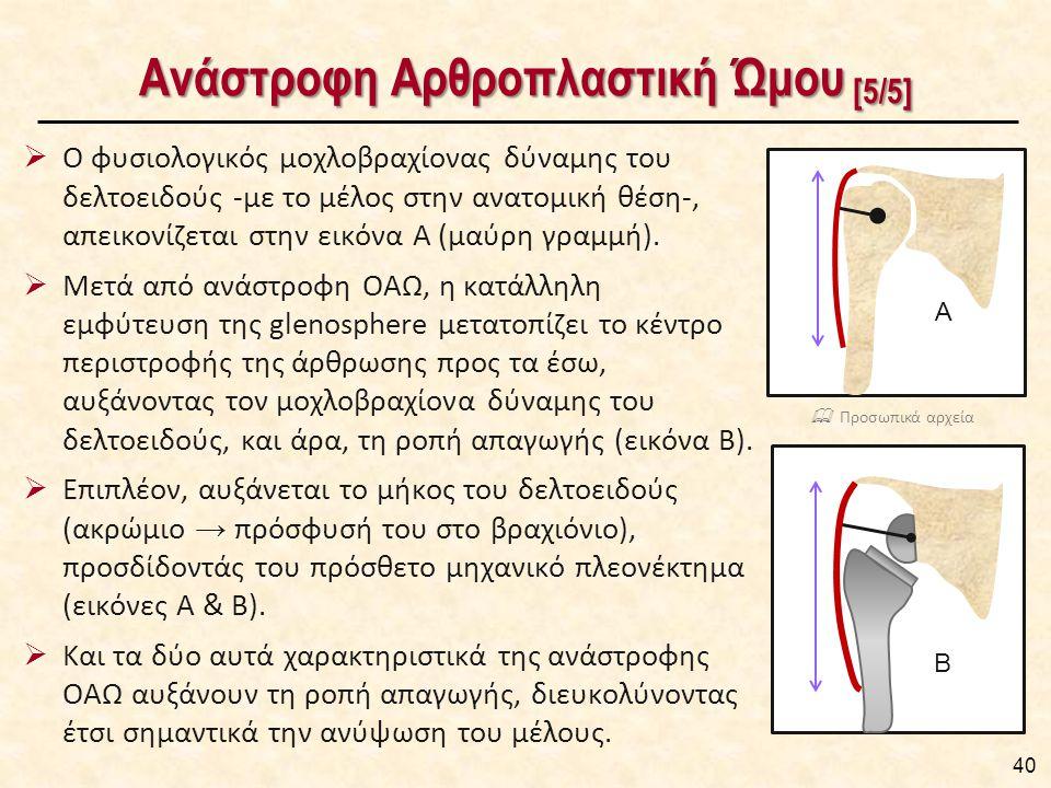 Αρθροπλαστική του Ώμου Χειρουργική Τεχνική