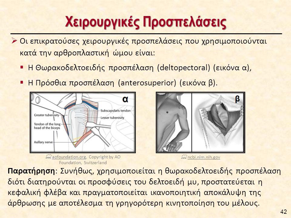 Ανατομική Αρθροπλαστική του Ώμου Χειρουργική Διαδικασία