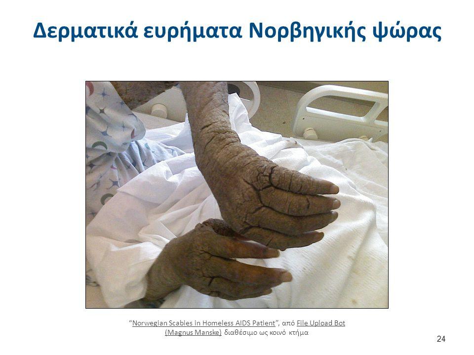 Σάρκωμα Kaposi Kaposi's sarcoma intraoral AIDS 072 lores , από Patho διαθέσιμο ως κοινό κτήμα
