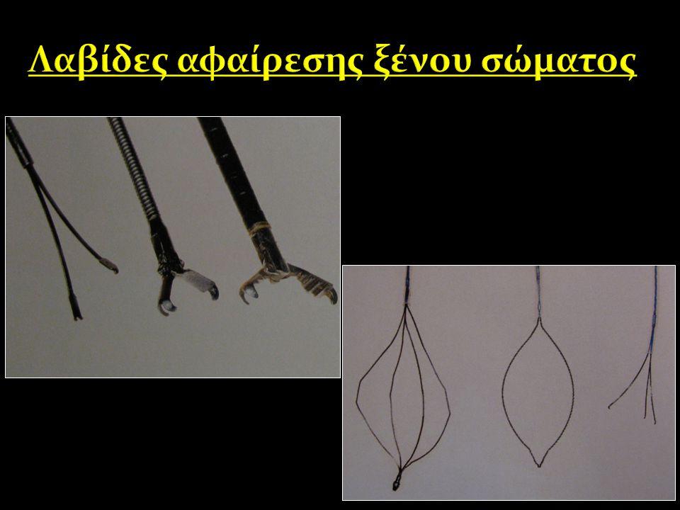 Λαβίδες αφαίρεσης ξένου σώματος