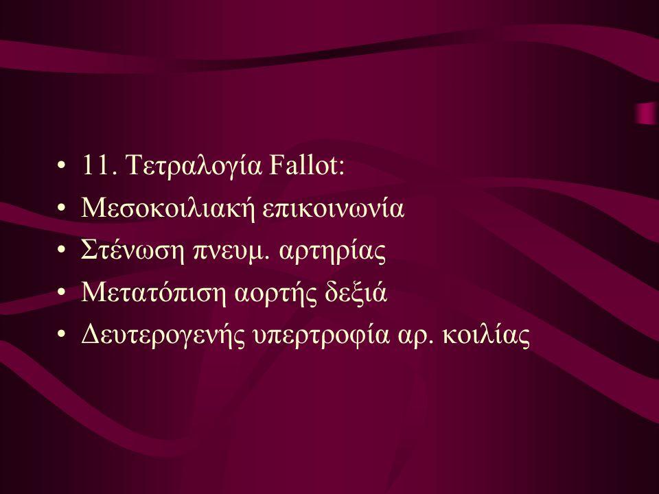 11. Τετραλογία Fallot: Μεσοκοιλιακή επικοινωνία. Στένωση πνευμ. αρτηρίας. Μετατόπιση αορτής δεξιά.
