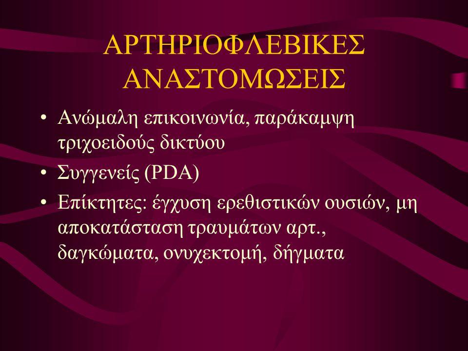 ΑΡΤΗΡΙΟΦΛΕΒΙΚΕΣ ΑΝΑΣΤΟΜΩΣΕΙΣ