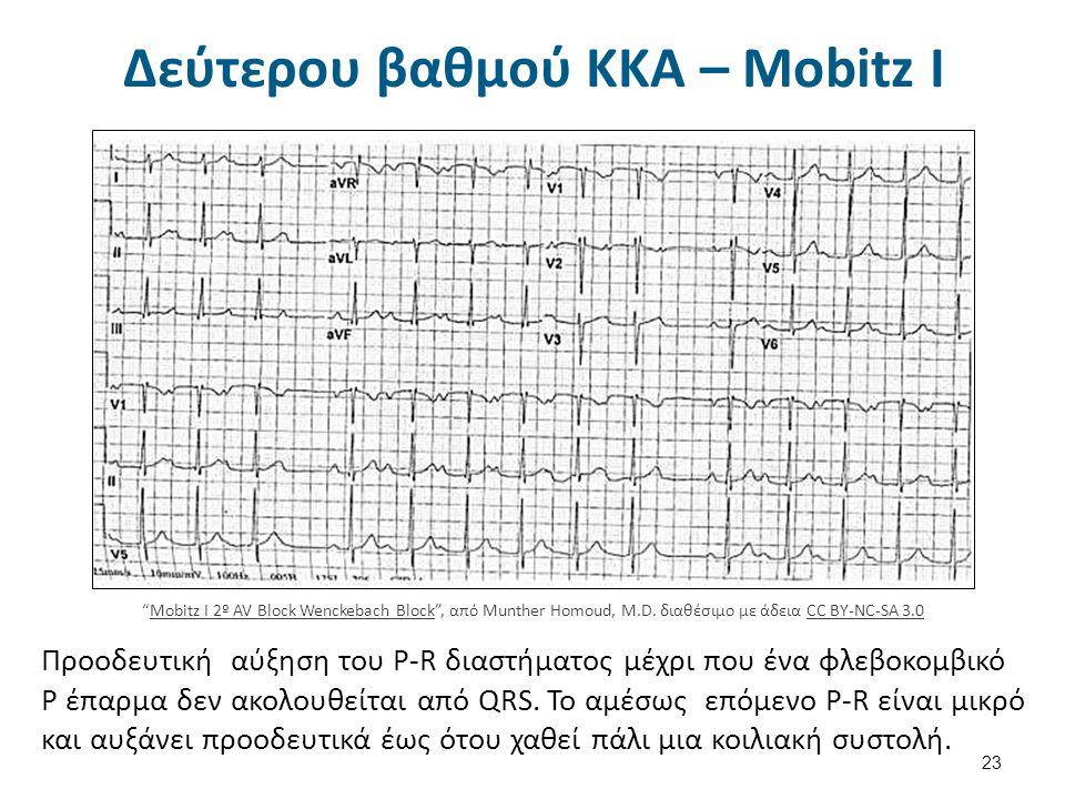 Δεύτερου βαθμού ΚΚΑ – Mobitz II