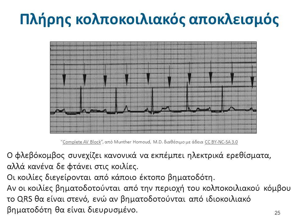 Υπερκοιλιακή ταχυκαρδία