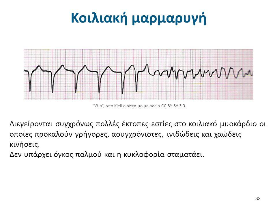 Rhythm tachycardia διαθέσιμο με άδεια CC BY-NC-SA 3.0