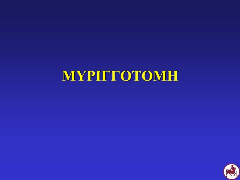 ΜΥΡΙΓΓΟΤΟΜΗ