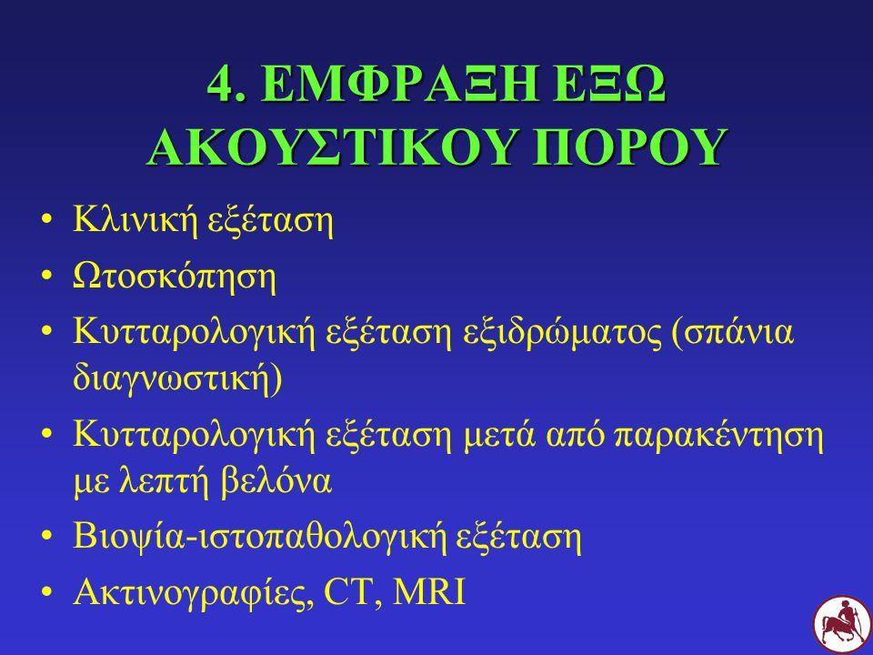 4. ΕΜΦΡΑΞΗ ΕΞΩ ΑΚΟΥΣΤΙΚΟΥ ΠΟΡΟΥ