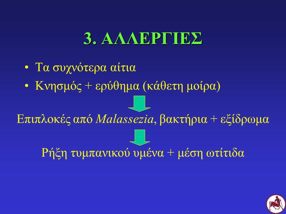 3. ΑΛΛΕΡΓΙΕΣ Τα συχνότερα αίτια Κνησμός + ερύθημα (κάθετη μοίρα)