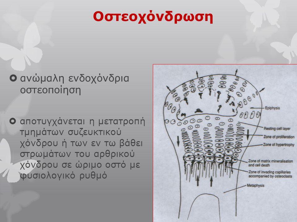 Οστεοχόνδρωση ανώμαλη ενδοχόνδρια οστεοποίηση