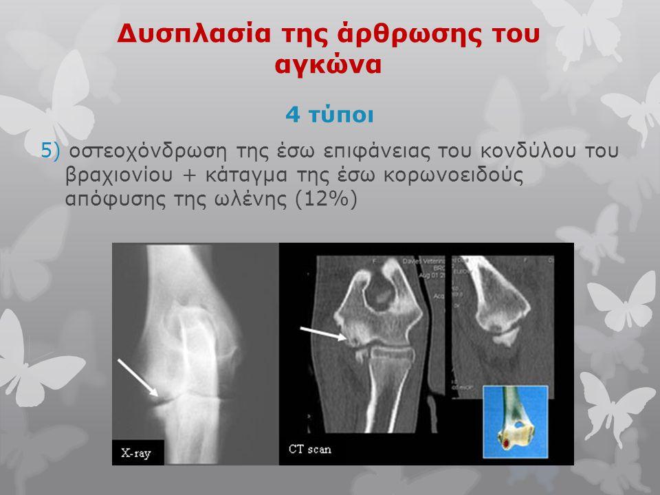 Δυσπλασία της άρθρωσης του αγκώνα