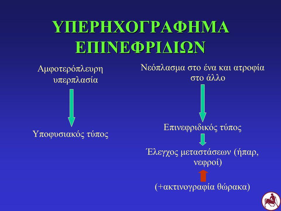 ΥΠΕΡΗΧΟΓΡΑΦΗΜΑ ΕΠΙΝΕΦΡΙΔΙΩΝ