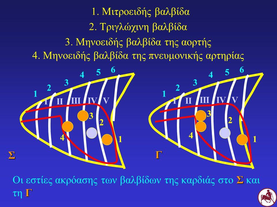 3. Μηνοειδής βαλβίδα της αορτής