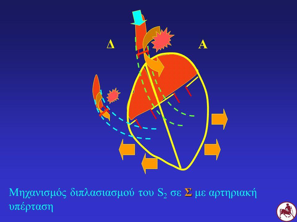 Δ Α Μηχανισμός διπλασιασμού του S2 σε Σ με αρτηριακή υπέρταση