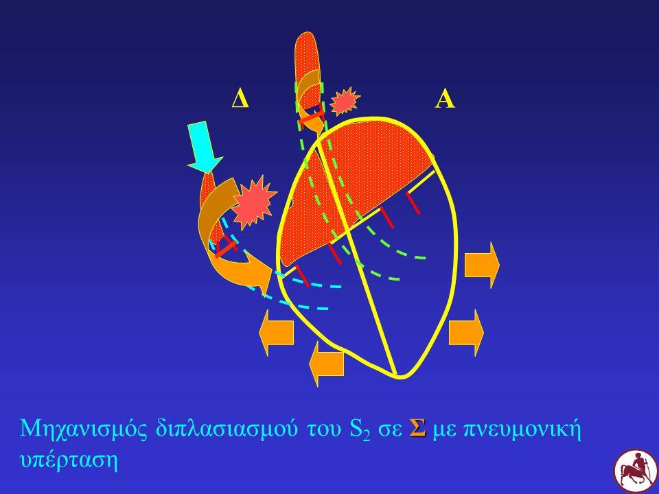 Δ Α Μηχανισμός διπλασιασμού του S2 σε Σ με πνευμονική υπέρταση