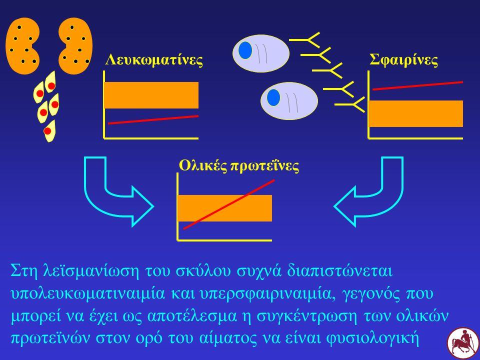 Σφαιρίνες Λευκωματίνες. Ολικές πρωτεΐνες.