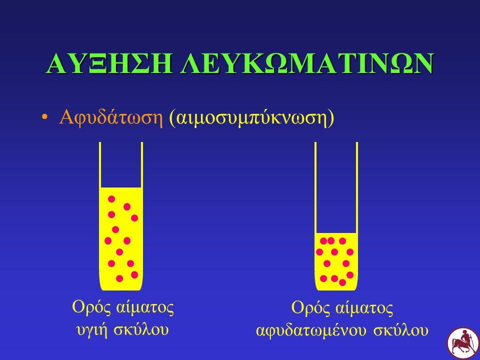 ΑΥΞΗΣΗ ΛΕΥΚΩΜΑΤΙΝΩΝ Αφυδάτωση (αιμοσυμπύκνωση)