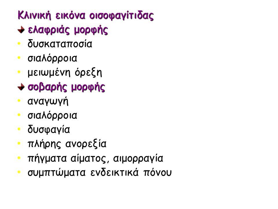 Κλινική εικόνα οισοφαγίτιδας