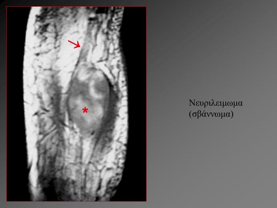 Νευριλειμωμα (σβάννωμα)