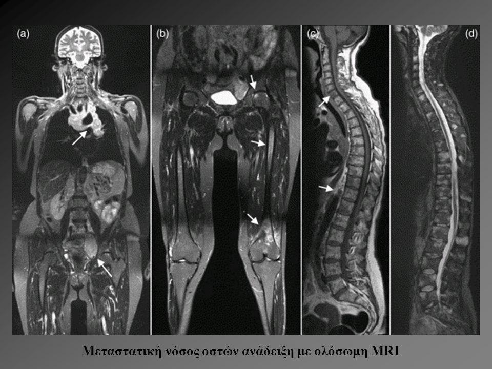 Μεταστατική νόσος οστών ανάδειξη με ολόσωμη MRI