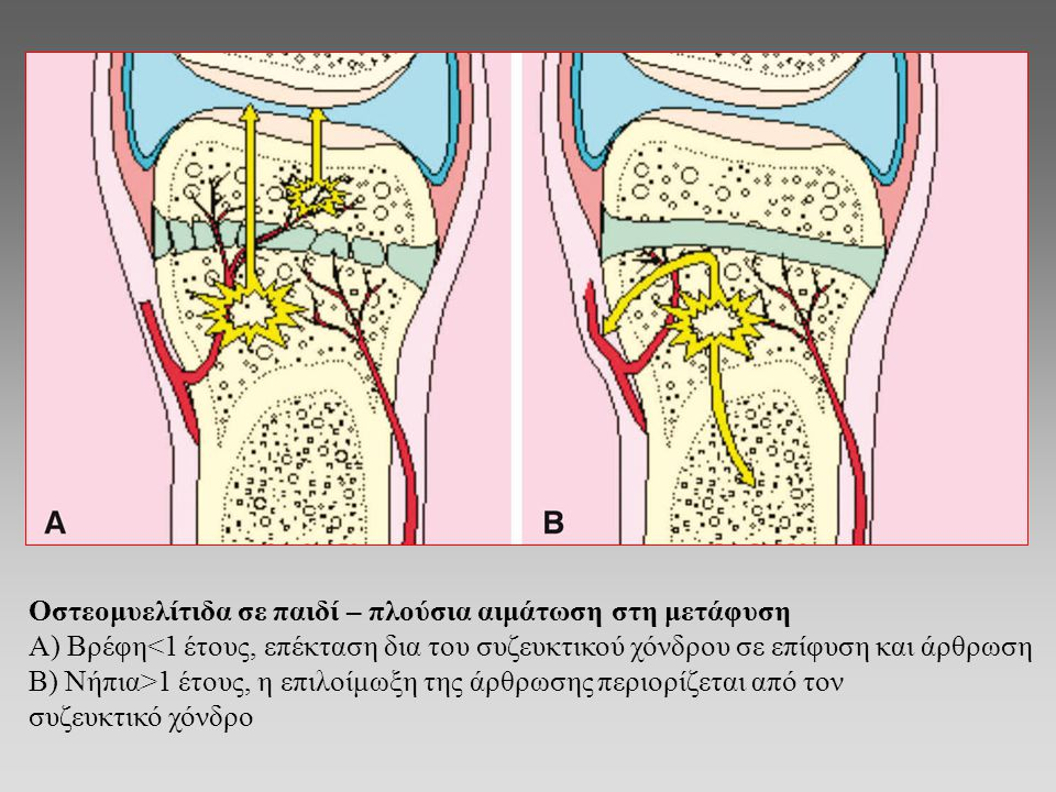 Οστεομυελίτιδα σε παιδί – πλούσια αιμάτωση στη μετάφυση
