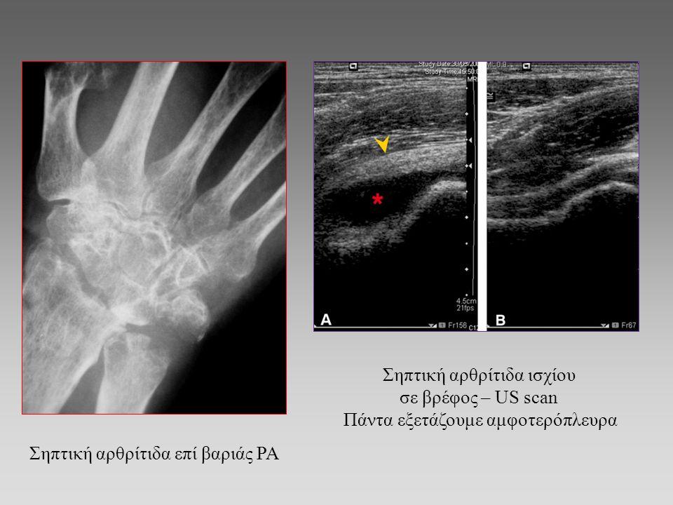 Σηπτική αρθρίτιδα ισχίου σε βρέφος – US scan