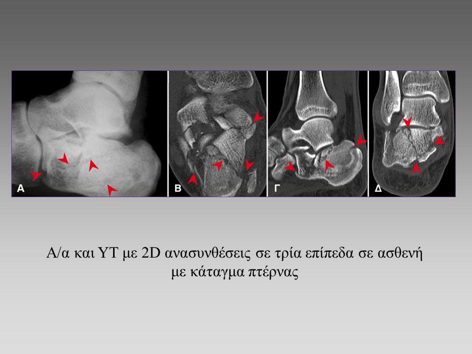 Α/α και ΥΤ με 2D ανασυνθέσεις σε τρία επίπεδα σε ασθενή